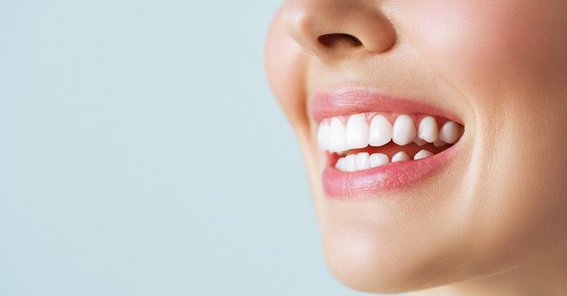 ¿Cuál es la forma más segura de realizar un blanqueamiento dental en casa?