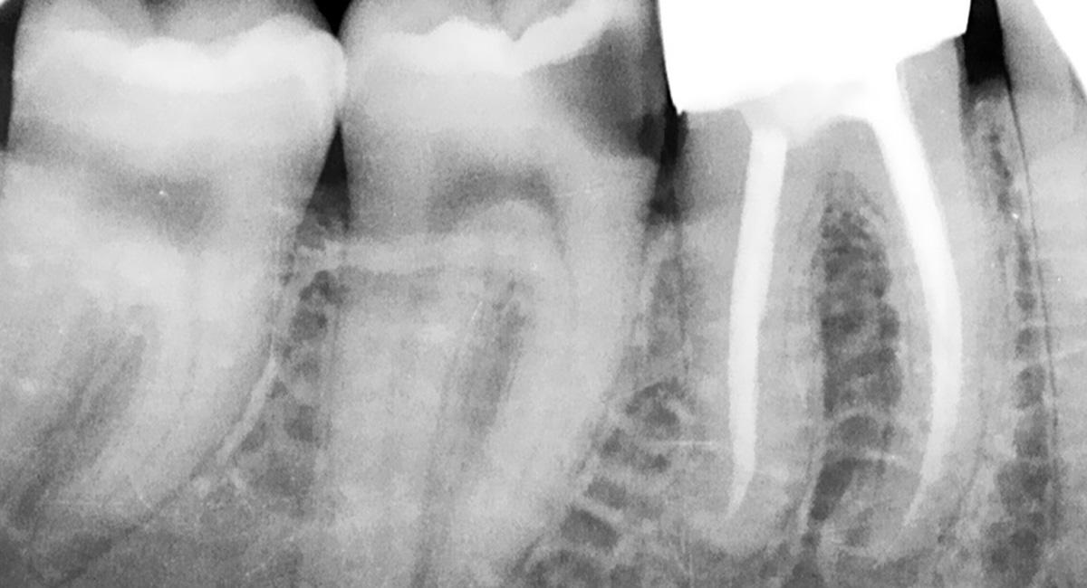 Radiografía Endodoncia
